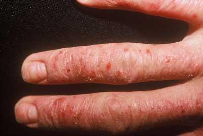 Enfermedades de la piel