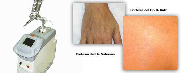eliminar tatuaje Valencia