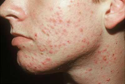 Enfermedades dermatológicas y venéreas