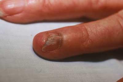 Enfermedades dermatológicas