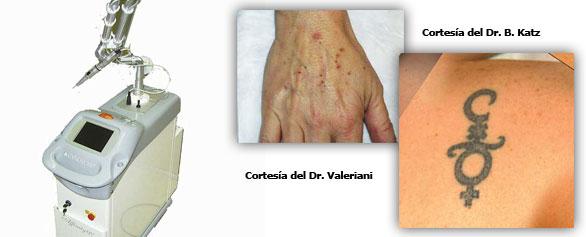 Láser de última generación indicado para lesiones pigmentadas y tatuajes.